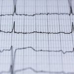 New blood thinner may help people with irregular heartbeat