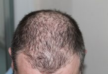 Scientists discover the genetic cause of male baldness