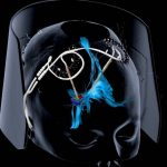 Deep brain stimulation may help fight depression