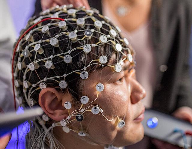 New brain stimulation may help treat depression