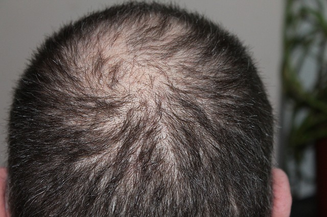 This treatment could help regrow your hair