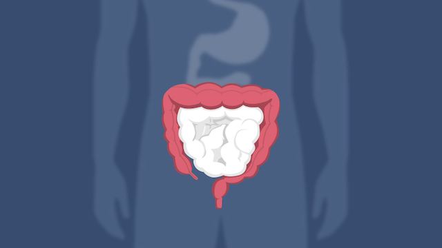 What You Should Know About Colon Cancer And Rectal Cancer