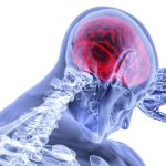 What you should know about traumatic brain injury